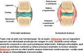 Osteoren – Treateaza sau doar alina durerile?