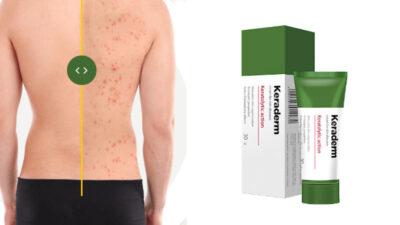 Keraderm Psoriazis – ameliorează simptomele psoriazisului și regenerează pielea