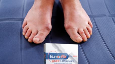 BunionFix – kit pentru ameliorarea durerii provocate de monturi
