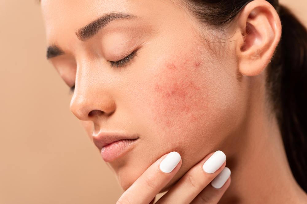 acnee fata