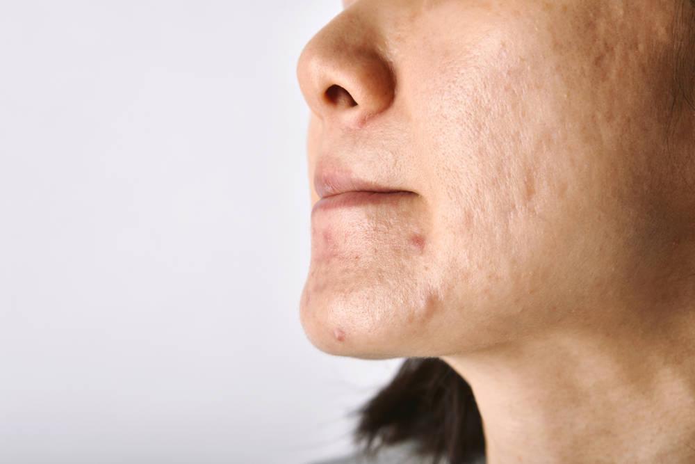acnee la menopauza acnee hormonala