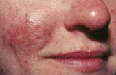 Acnee rozacee – cauzele apariției și opțiuni de tratament