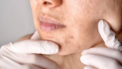Acnee vulgară – de ce apare și cum poate fi tratată