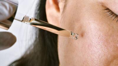 Tratament acnee – ingrediente active și remedii naturiste