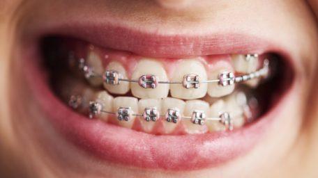 Cand este necesar aparatul ortodontic (dentar) ?